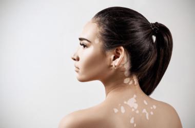 Vitiligo ny